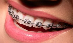 Relief Dental Clinic And Orthodontic Centre Perinthalmanna Malappuram