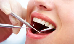 Smile Craft Dental Care Implant Centre Aluva Ernakulam
